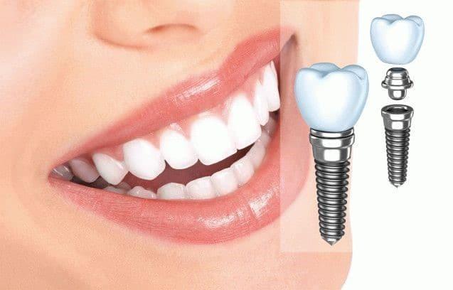 Какие методы имплантации зубов практикует Иван Служаев