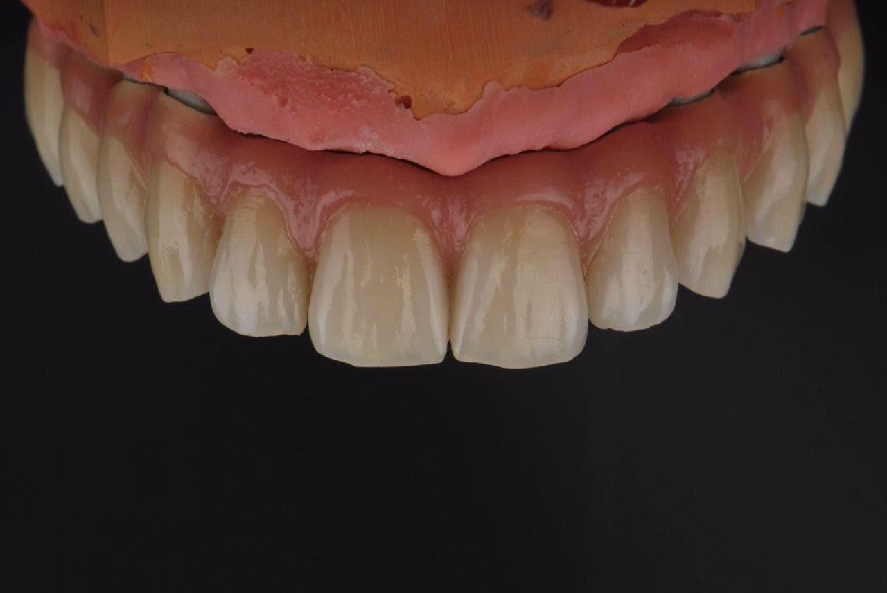 Имплантация верхних зубов