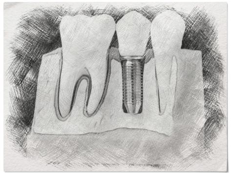 Как происходит имплантация
