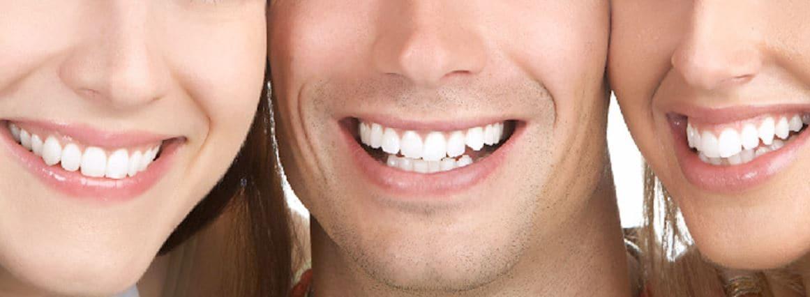 Сауна после имплантации зубов