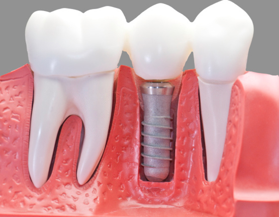 Как климат в Сочи влияет на заживление после имплантации зубов